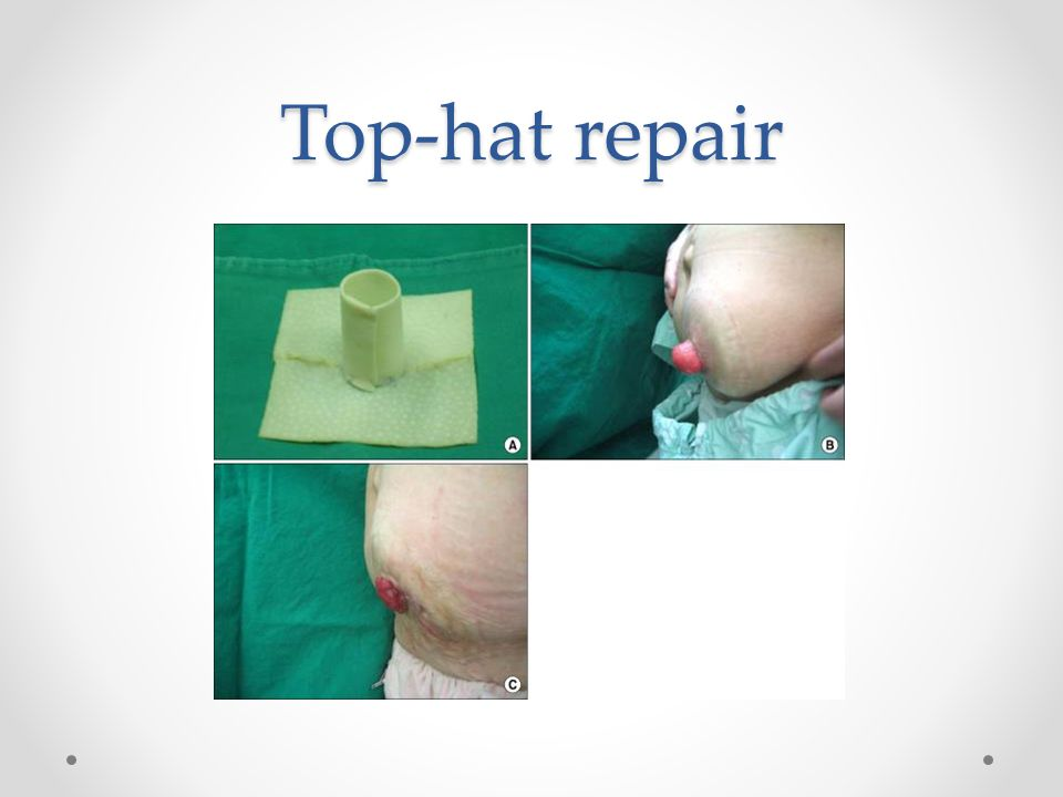 Top-hat repair