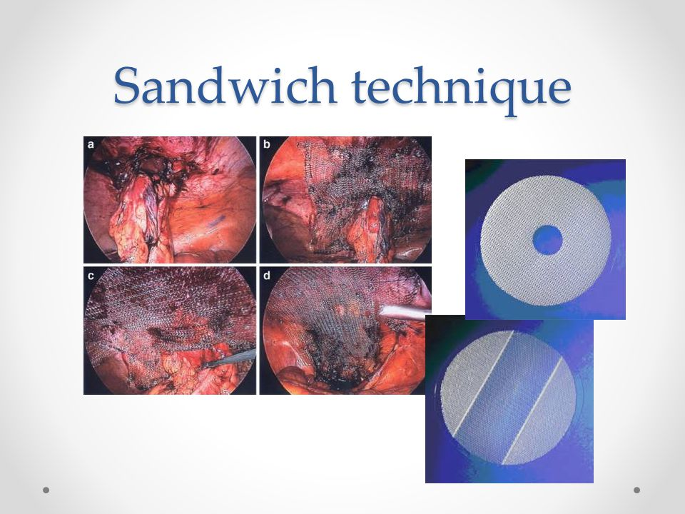 Sandwich technique