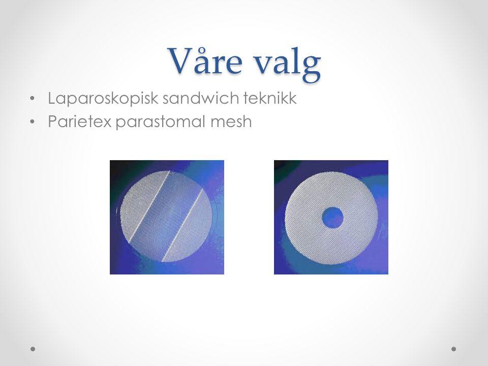 Våre valg Laparoskopisk sandwich teknikk Parietex parastomal mesh