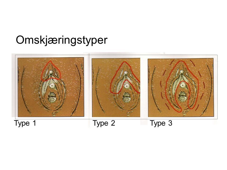 Omskjæringstyper Type 1 Type 2 Type 3