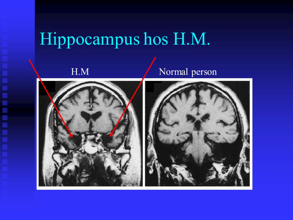 Hippocampus hos H.M. H.M Normal person