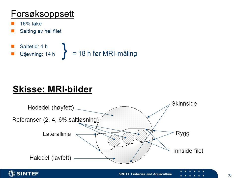 } = 18 h før MRI-måling Forsøksoppsett Skisse: MRI-bilder Skinnside