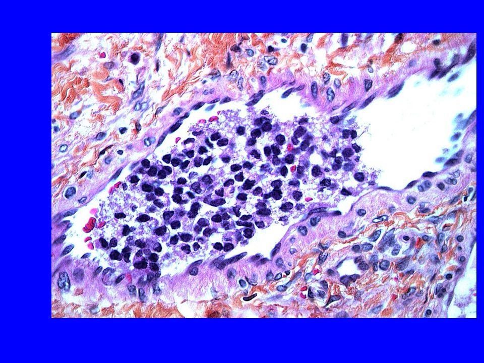 Her ser vi kar med tumorceller i lumen