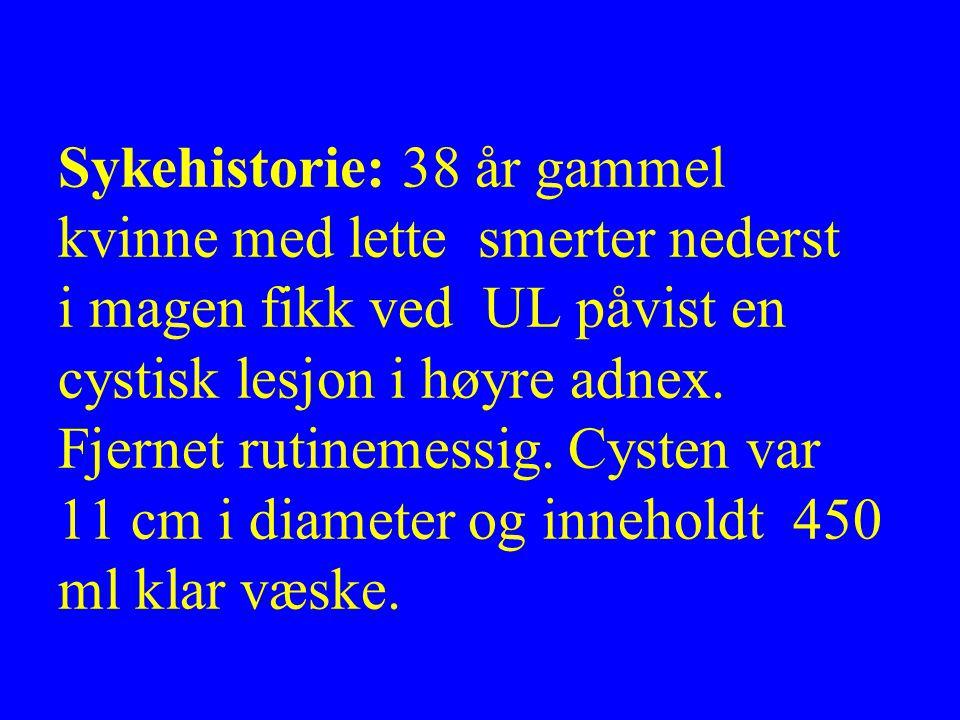 Sykehistorie: 38 år gammel kvinne med lette smerter nederst i magen fikk ved UL påvist en cystisk lesjon i høyre adnex.