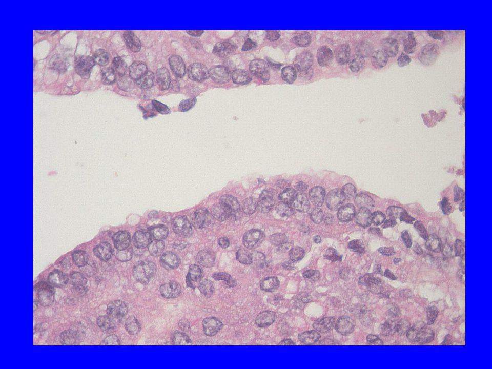 Også tumorcellepopulasjon viste vekslende morfologi