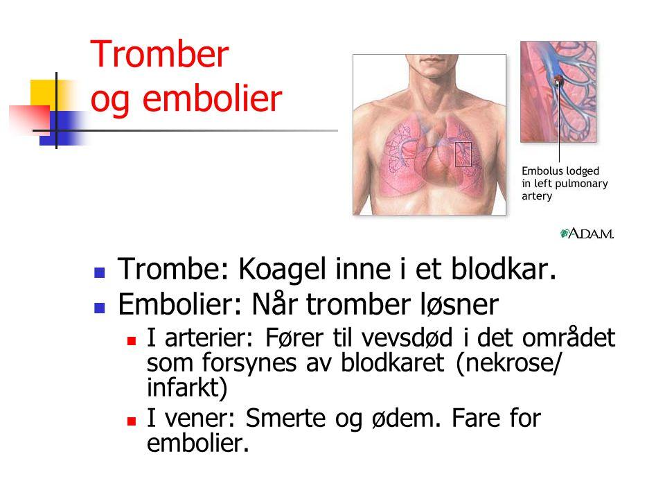 Tromber og embolier Trombe: Koagel inne i et blodkar.