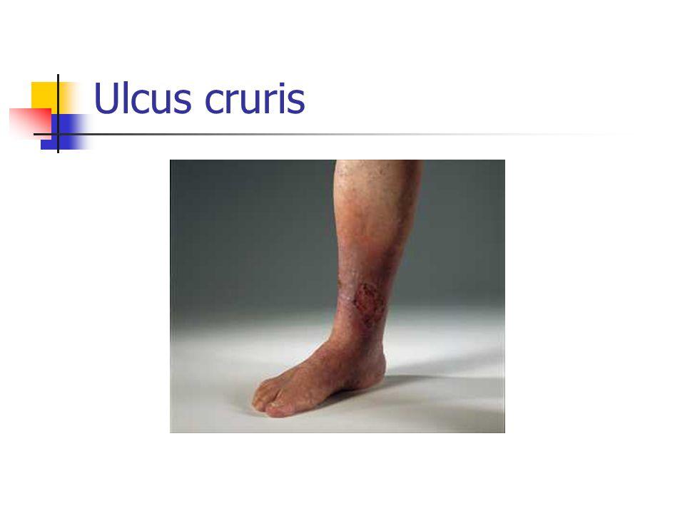 Ulcus cruris Dette er altså et sår som skyldes sykdom, ikke skade.