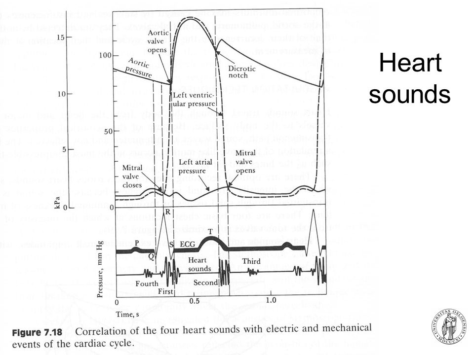 Heart sounds Auscultation of the heart = valuable information