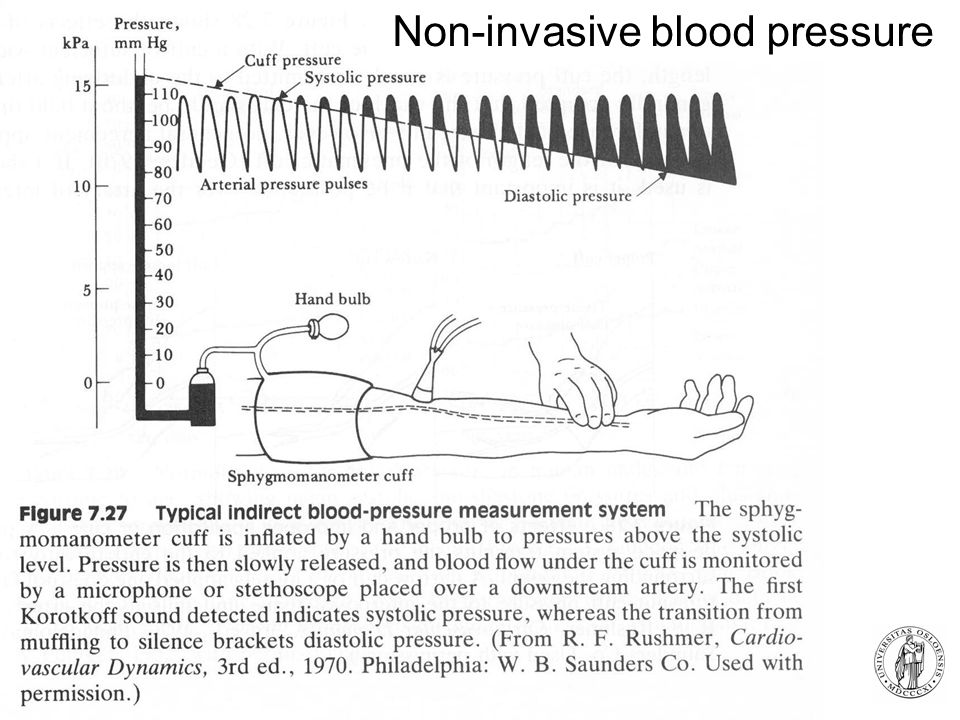 Non-invasive blood pressure
