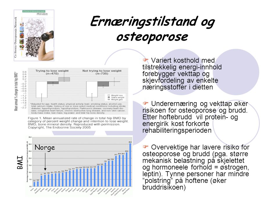 Ernæringstilstand og osteoporose