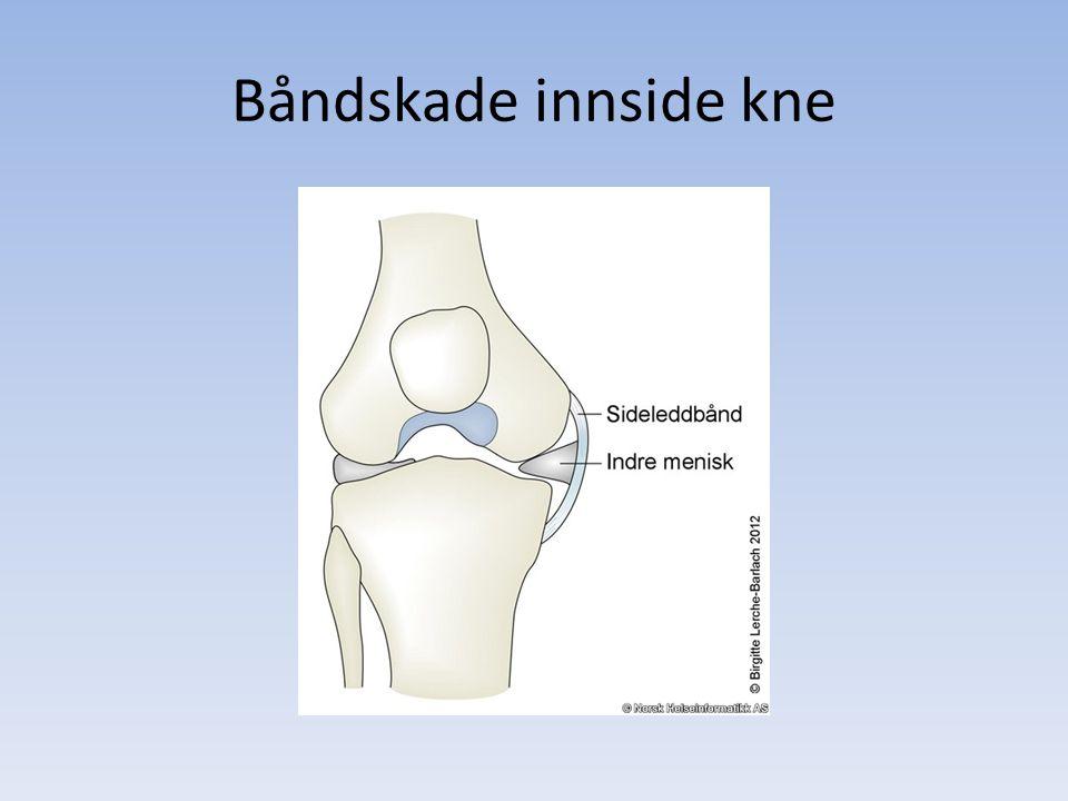 Båndskade innside kne Vanligste kneskaden 40% av alle kneskader involverer med. Bånd.