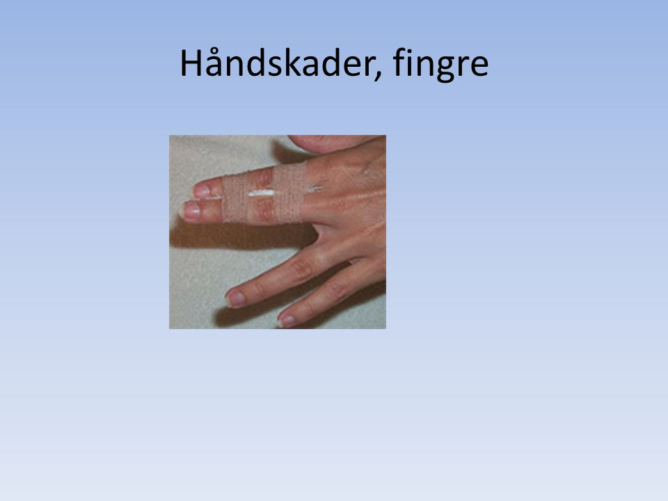 Håndskader, fingre