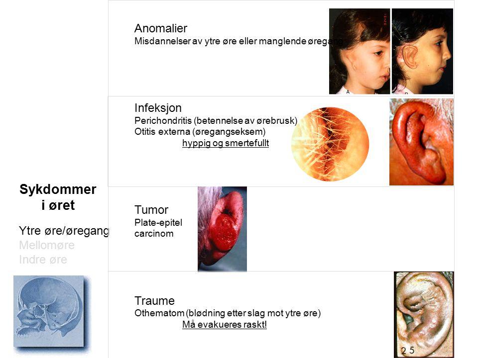Sykdommer i øret Anomalier Infeksjon Tumor Traume Ytre øre/øregang
