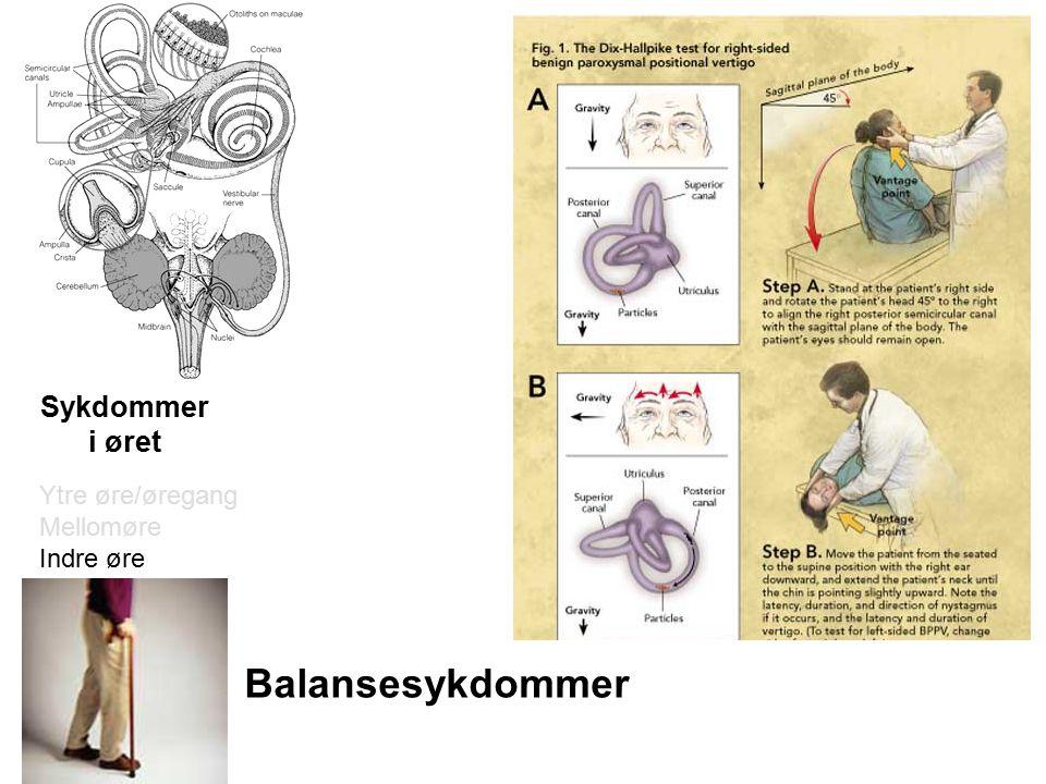 Sykdommer i øret Ytre øre/øregang Mellomøre Indre øre Balansesykdommer
