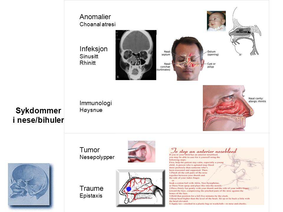 Sykdommer i nese/bihuler