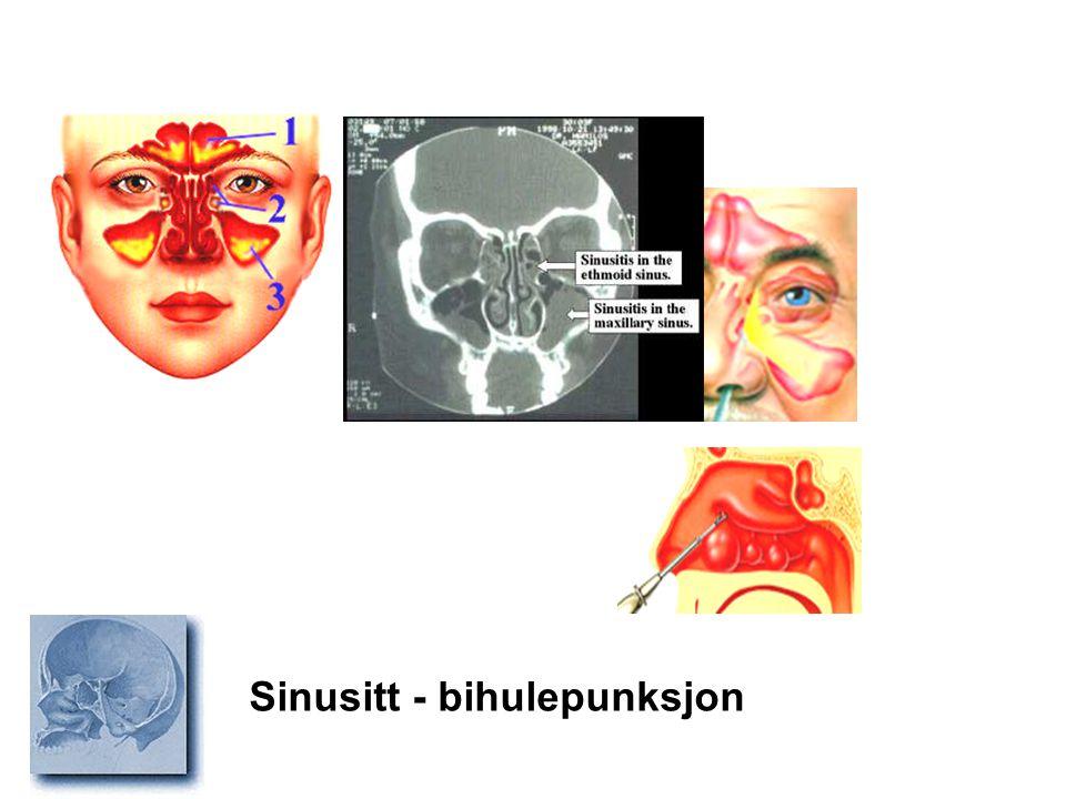 Sinusitt - bihulepunksjon