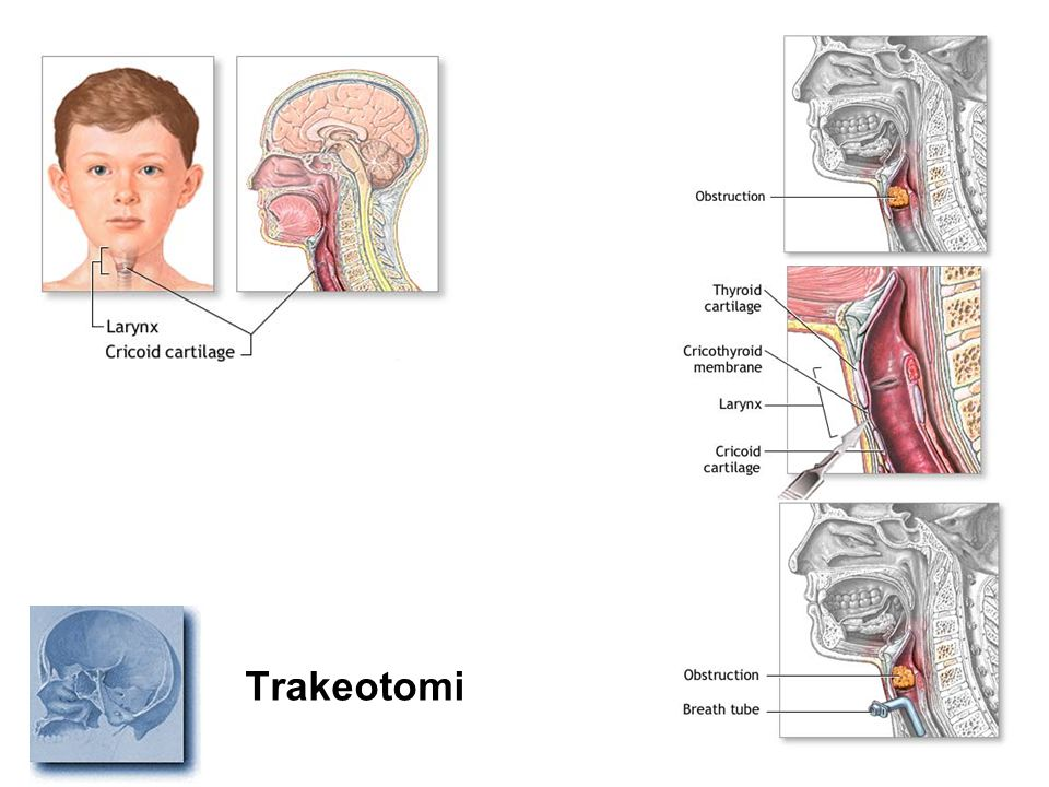 Trakeotomi
