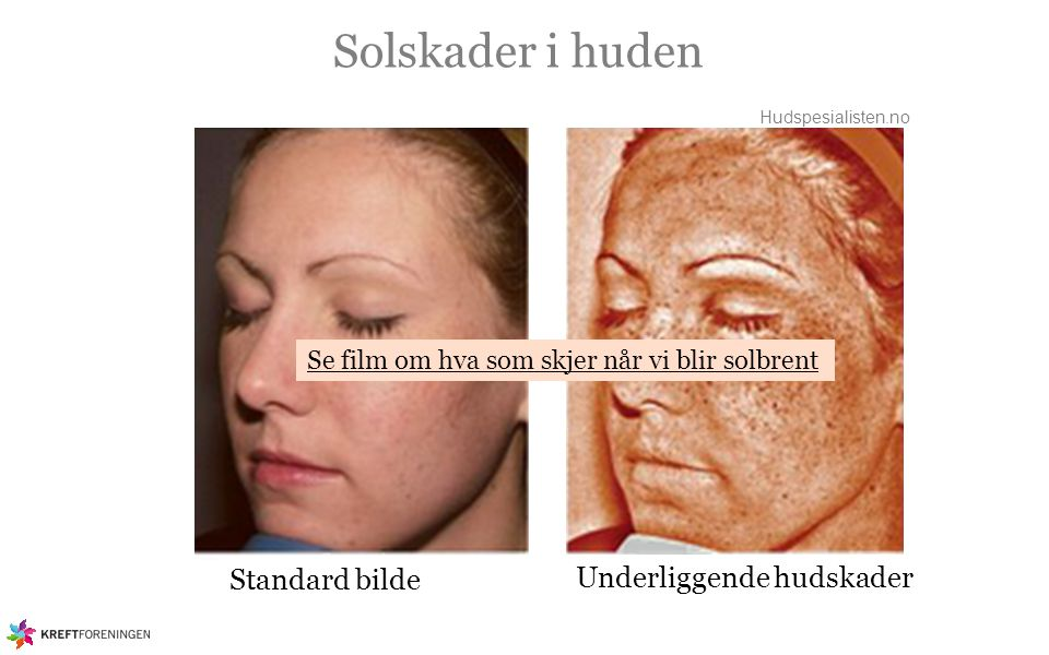Solskader i huden Standard bilde Underliggende hudskader