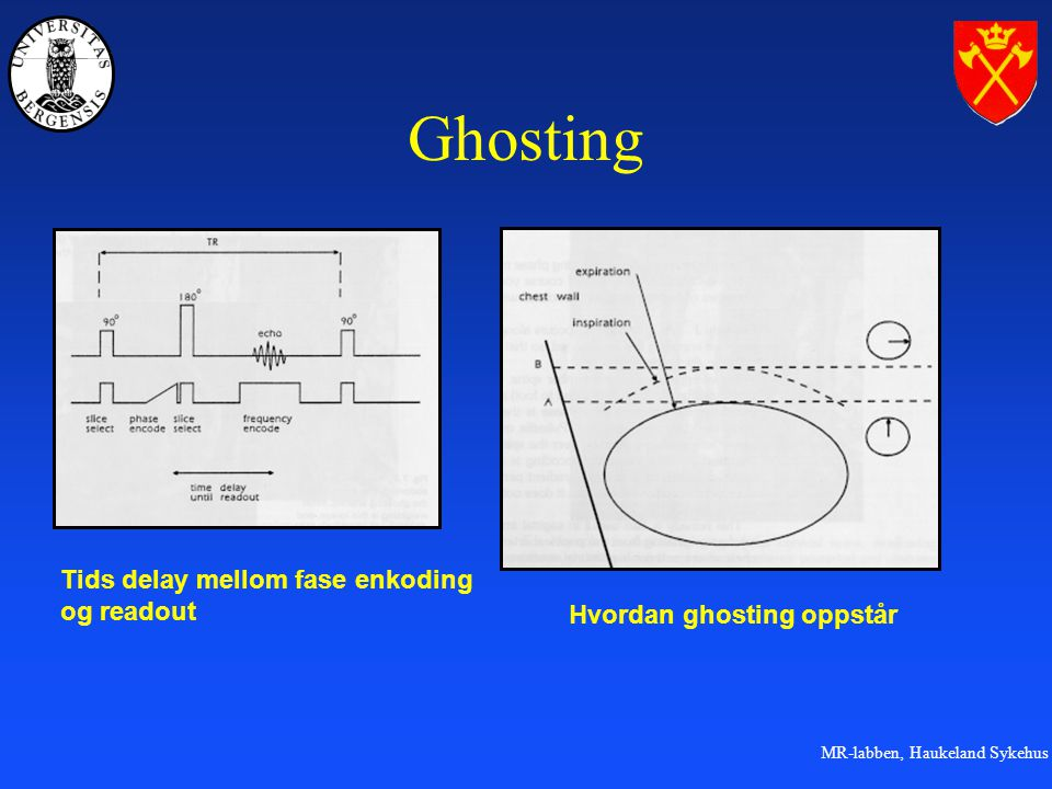 Ghosting Tids delay mellom fase enkoding og readout