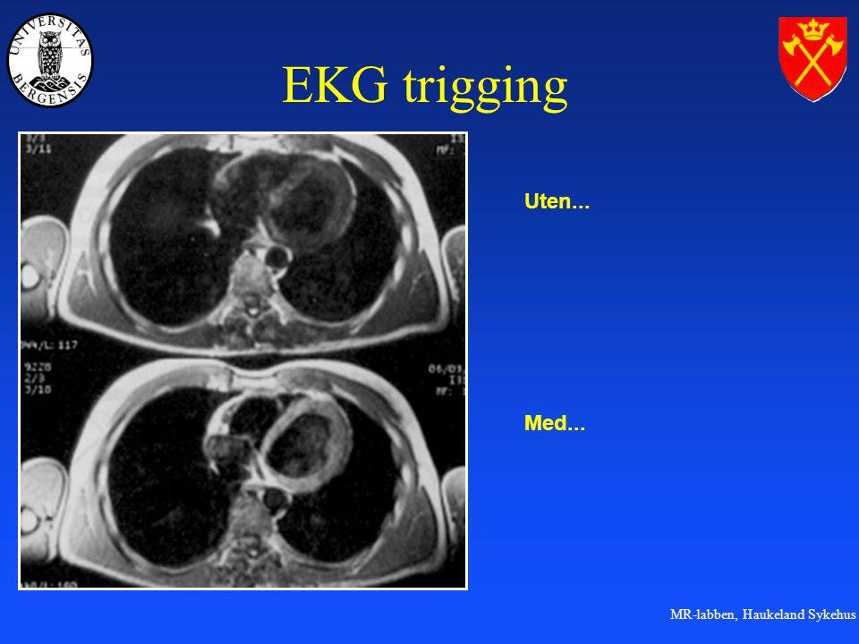 EKG trigging Uten... Med...