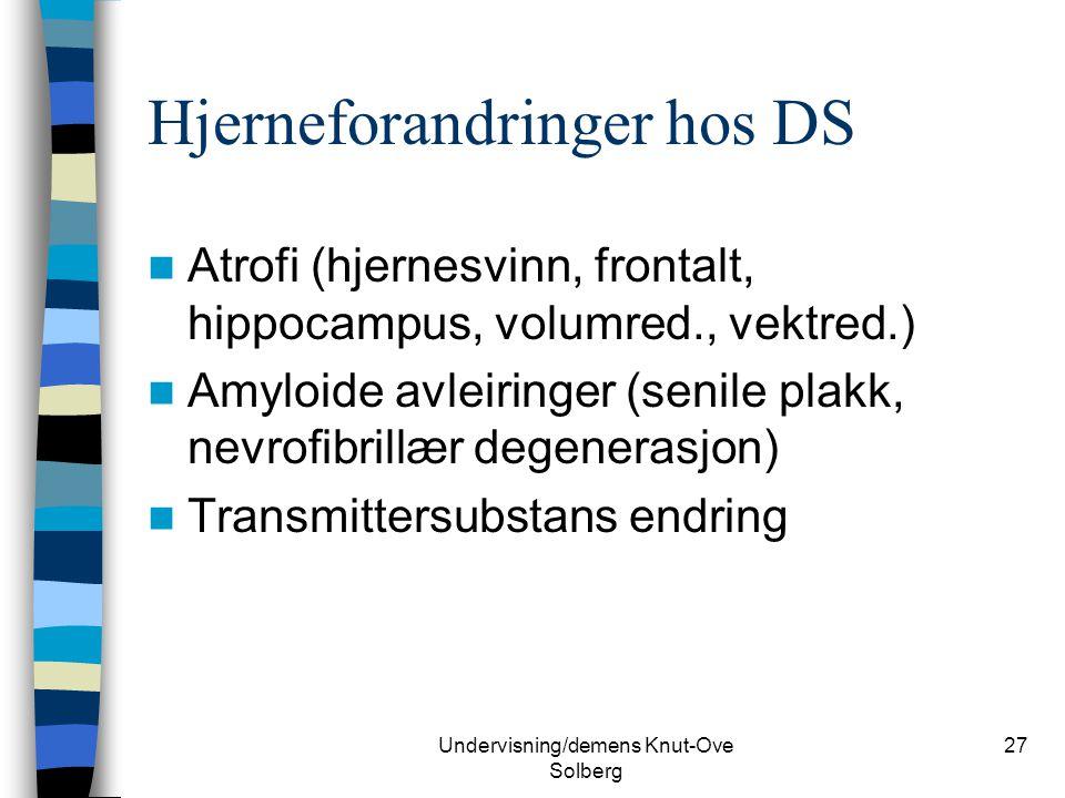Hjerneforandringer hos DS