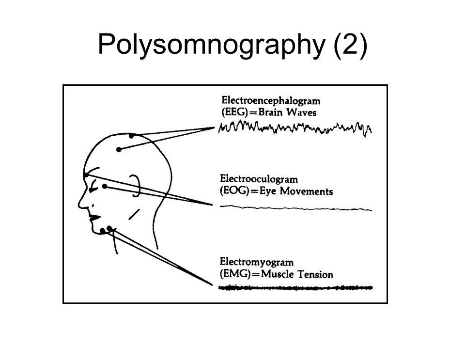 Polysomnography (2)