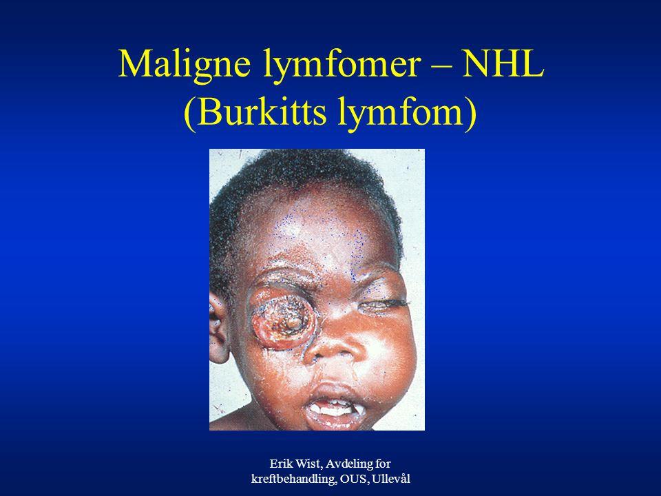 Maligne lymfomer – NHL (Burkitts lymfom)