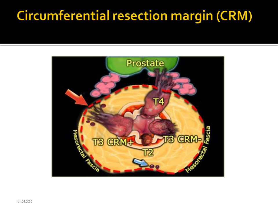 Circumferential resection margin (CRM)