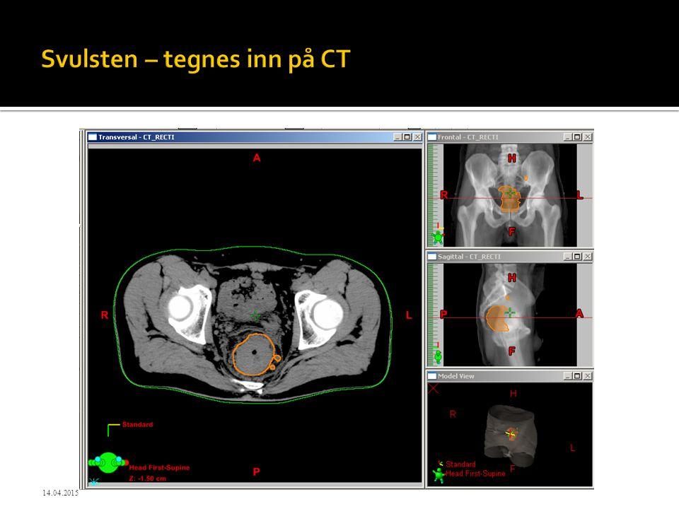 Svulsten – tegnes inn på CT