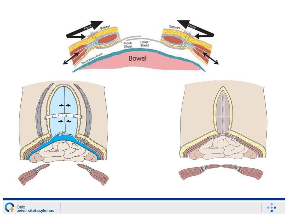 TAWT anlegges når pasienten er gjennom ødemfasen og i tilnærmet nullbalanse væskemessig.