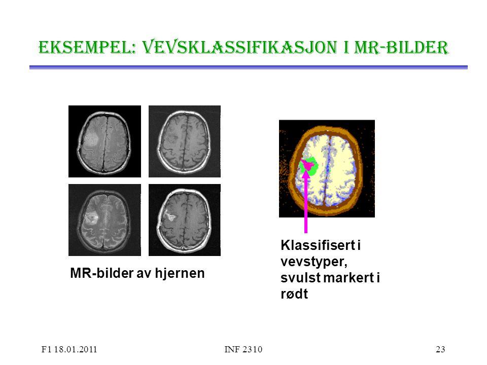 Eksempel: Vevsklassifikasjon i MR-bilder