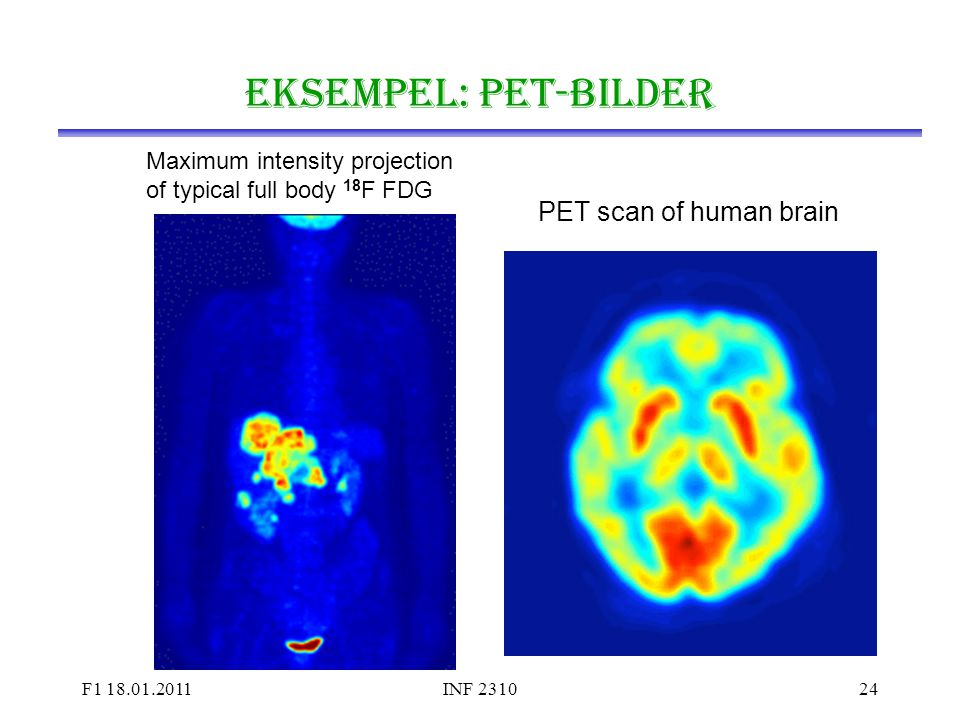 Eksempel: PET-bilder PET scan of human brain