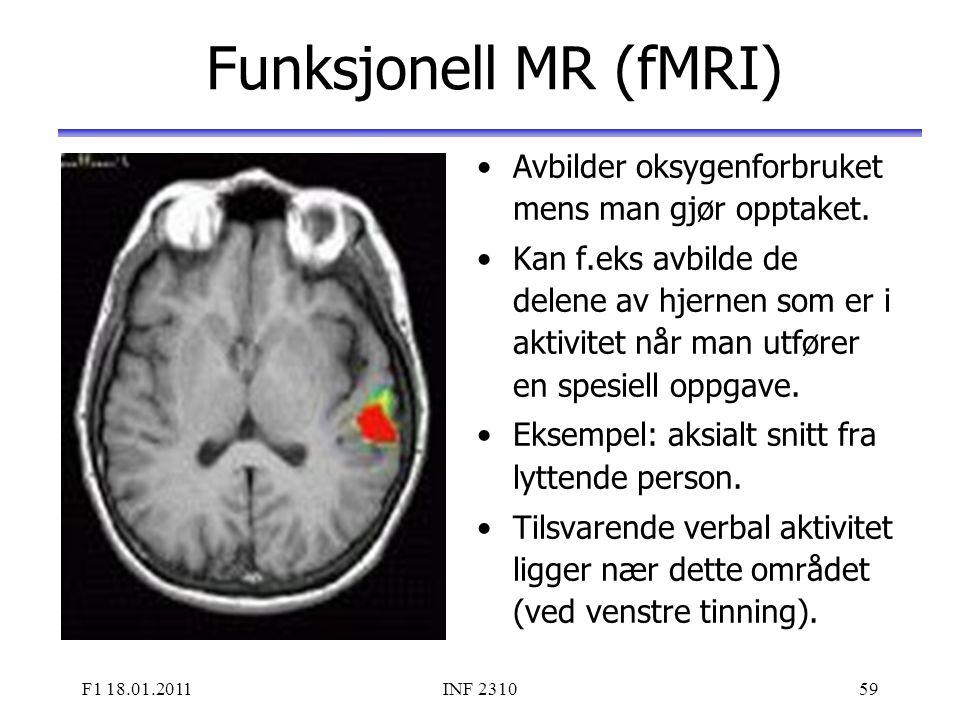 Funksjonell MR (fMRI) Avbilder oksygenforbruket mens man gjør opptaket.