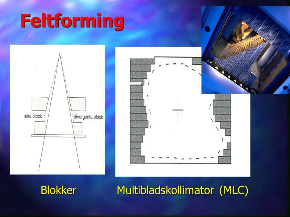 Feltforming Blokker Multibladskollimator (MLC)