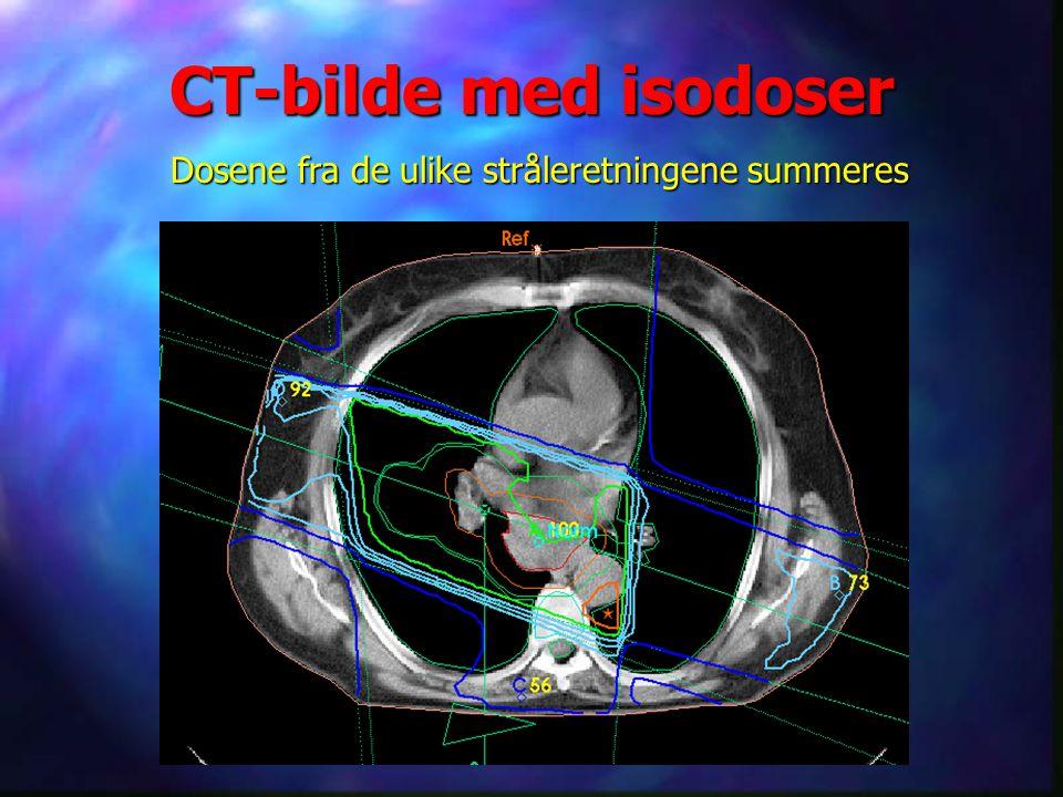 CT-bilde med isodoser Dosene fra de ulike stråleretningene summeres