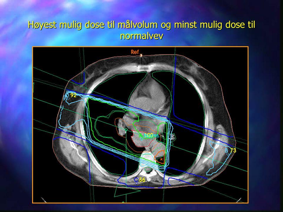 Høyest mulig dose til målvolum og minst mulig dose til normalvev