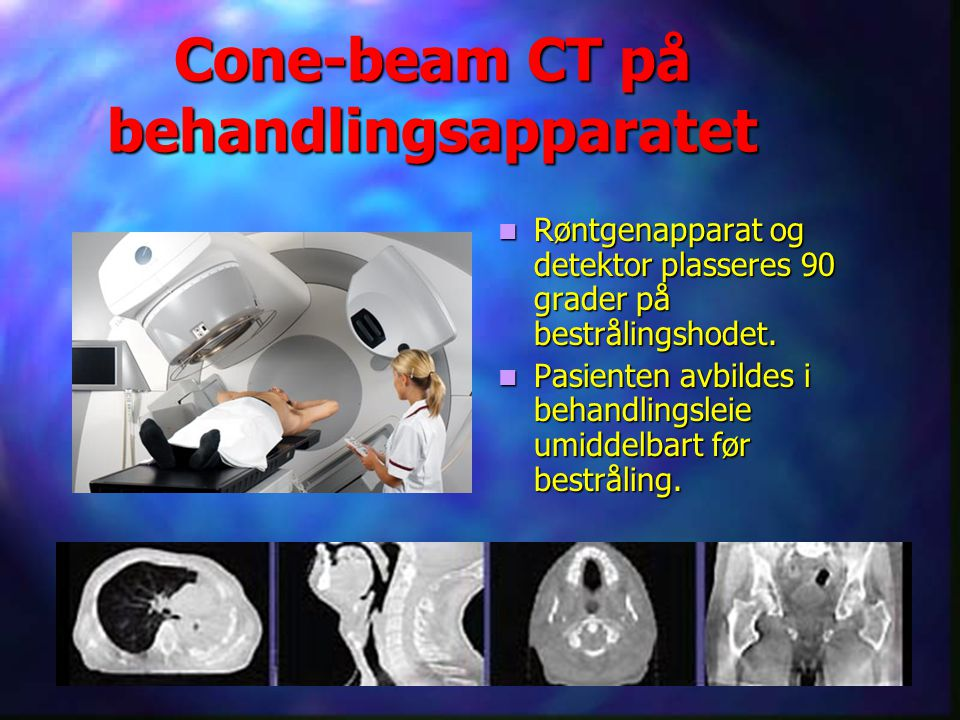Cone-beam CT på behandlingsapparatet