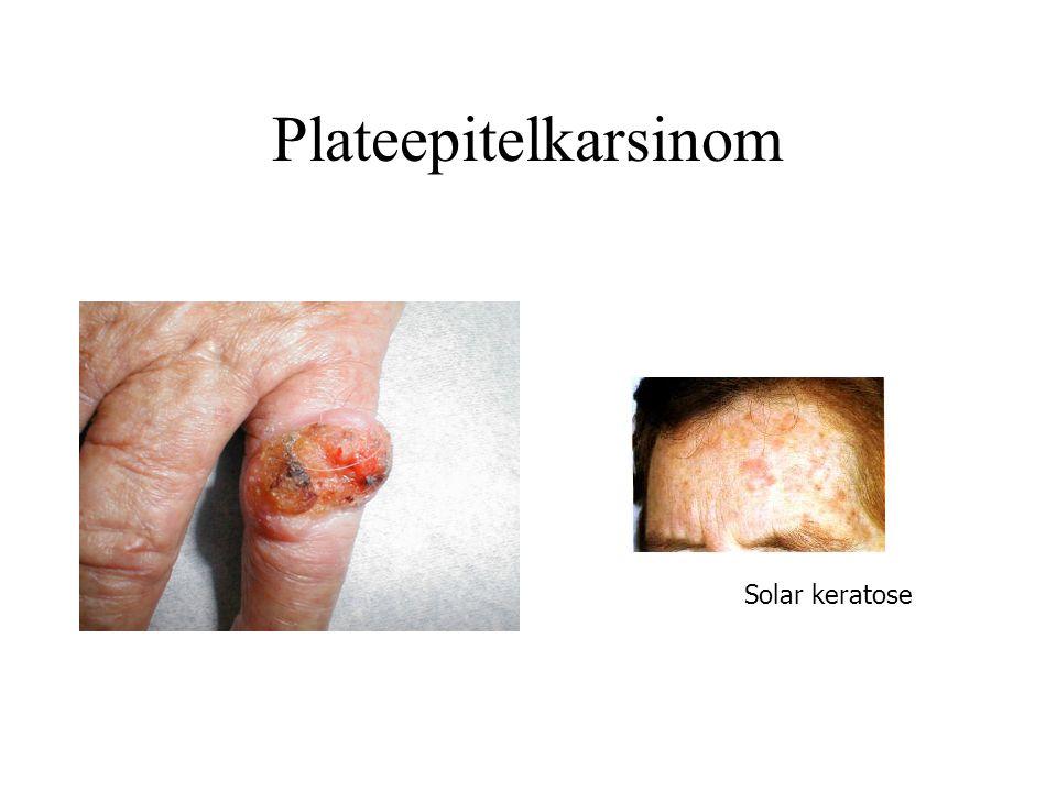Plateepitelkarsinom Solar keratose