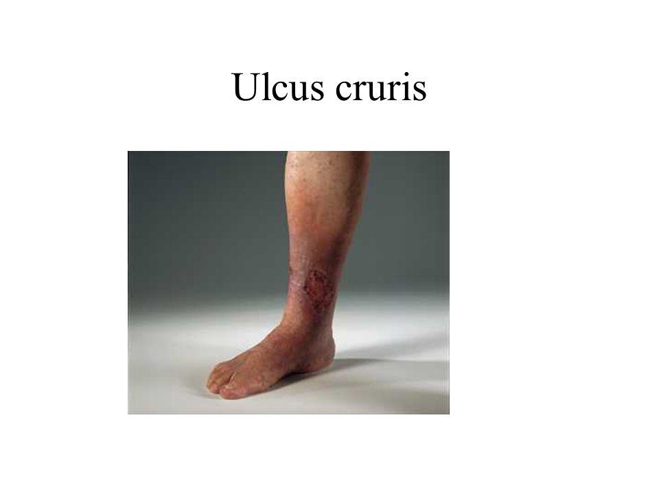 Ulcus cruris