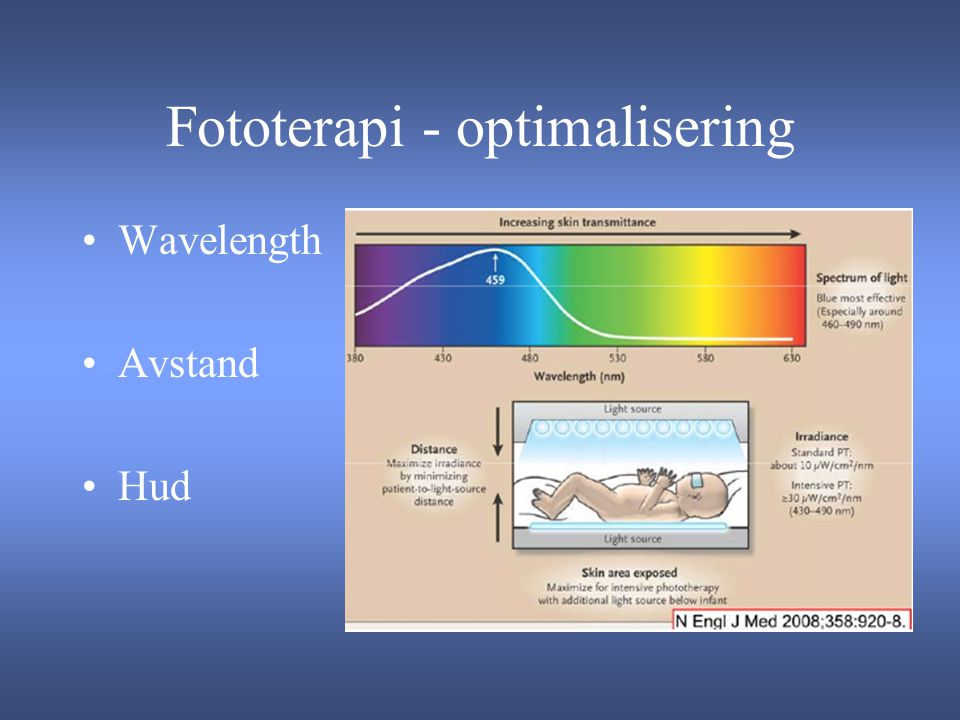 Fototerapi - optimalisering
