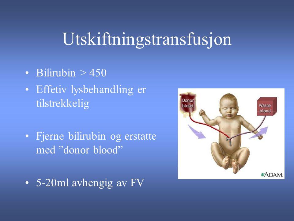 Utskiftningstransfusjon