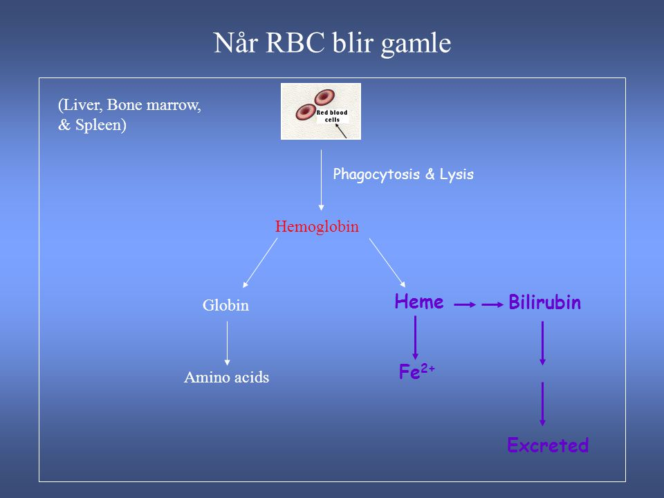 Når RBC blir gamle Heme Bilirubin Fe2+ Excreted (Liver, Bone marrow,