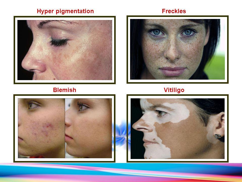 Hyper pigmentation Freckles Vitiligo Blemish