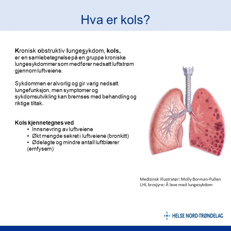 Hva er kols Kronisk obstruktiv lungesykdom, kols,
