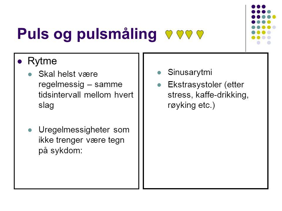 Puls og pulsmåling Rytme Sinusarytmi