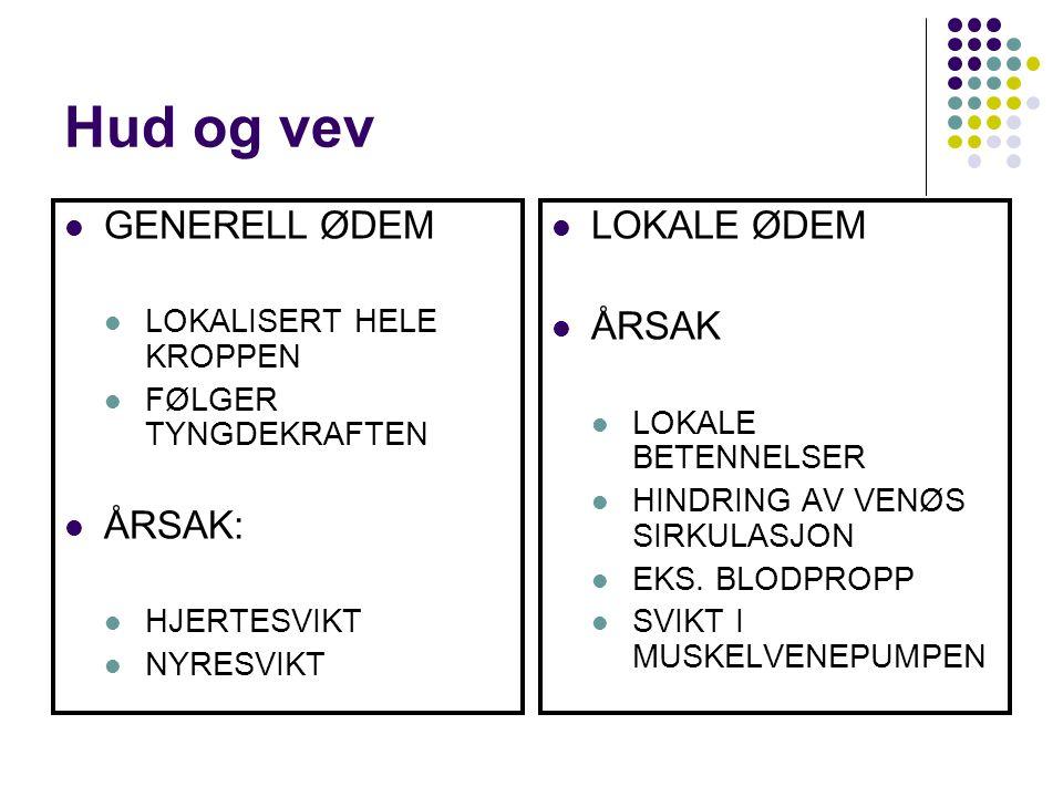 Hud og vev GENERELL ØDEM ÅRSAK: LOKALE ØDEM ÅRSAK