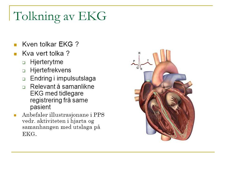 Tolkning av EKG Kven tolkar EKG Kva vert tolka Hjerterytme