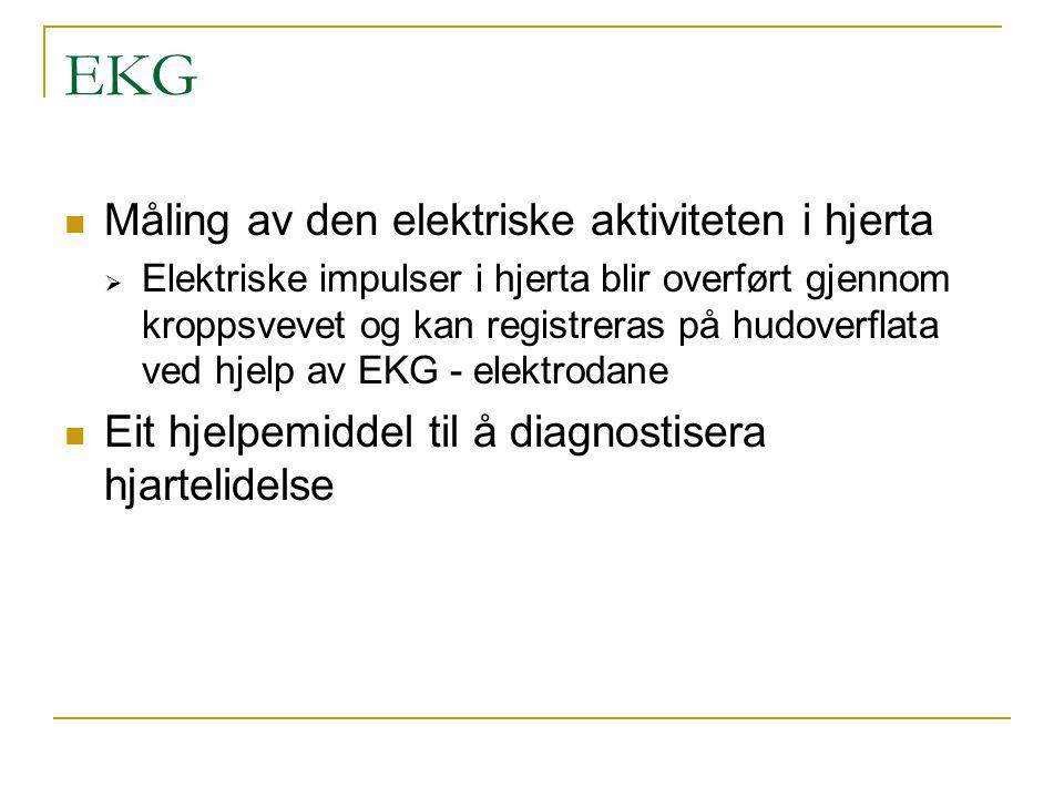 EKG Måling av den elektriske aktiviteten i hjerta