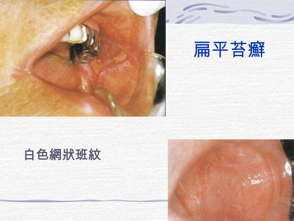 扁平苔癬 白色網狀班紋