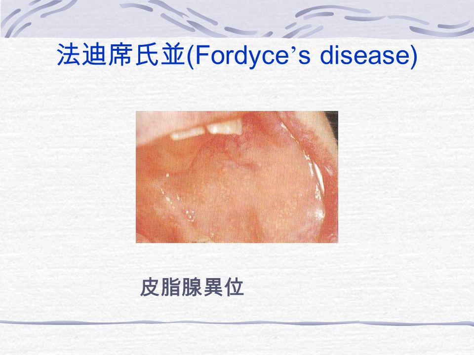 法迪席氏並(Fordyce's disease)
